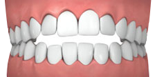 OPEN BITE BRACES
