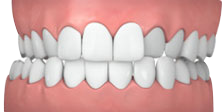 CROSSBITE BRACES
