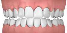 OVERLY CROWDED BRACES